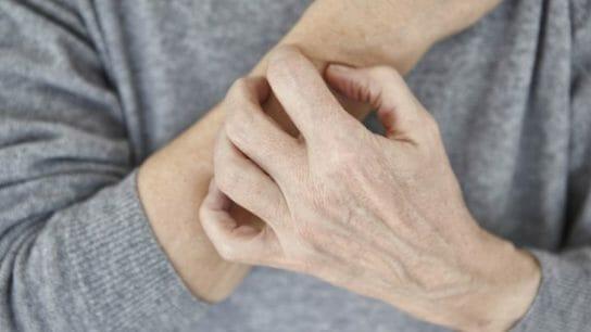 A woman scratching her skin