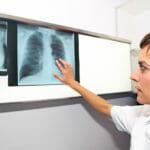 Pulmonary Arterial Hypertension PAH